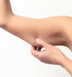 softlift-braccia